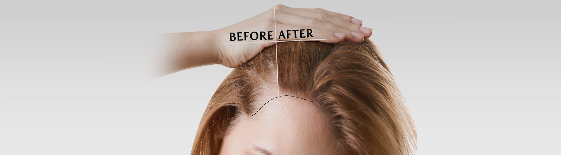 PRP for Hair Loss in Tarzana